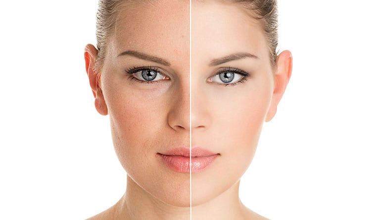 What Can Stop You From Undergoing Facelift Surgery?